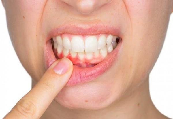 Dişlər haqqında bilmədiklərimiz