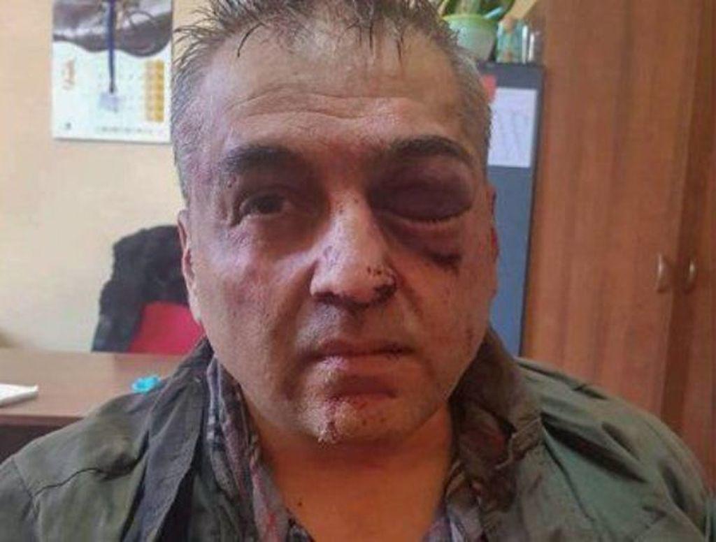 Yerevanda bank yaran polkovnik 500 min dollar oğurlayıb